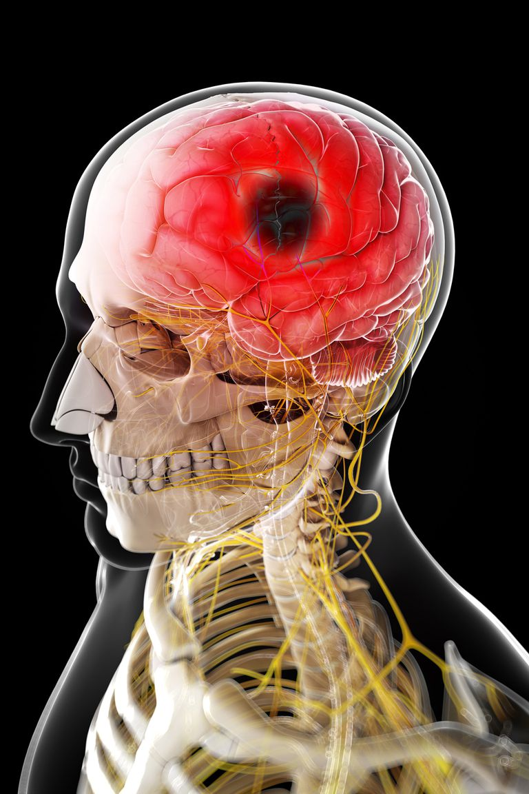 How A Hemorrhagic Stroke Differs From An Ischemic Stroke