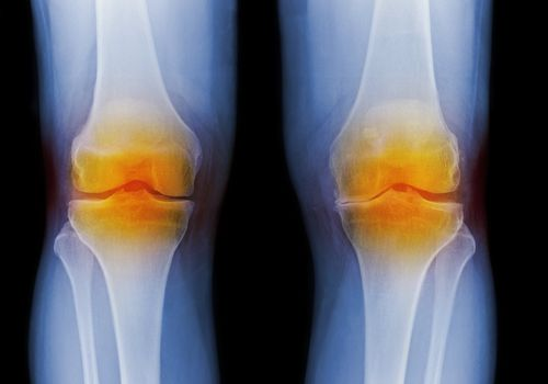 Arthritic knees, X-ray