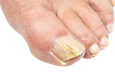 The 7 Best Toenail Fungus Treatments of 2019