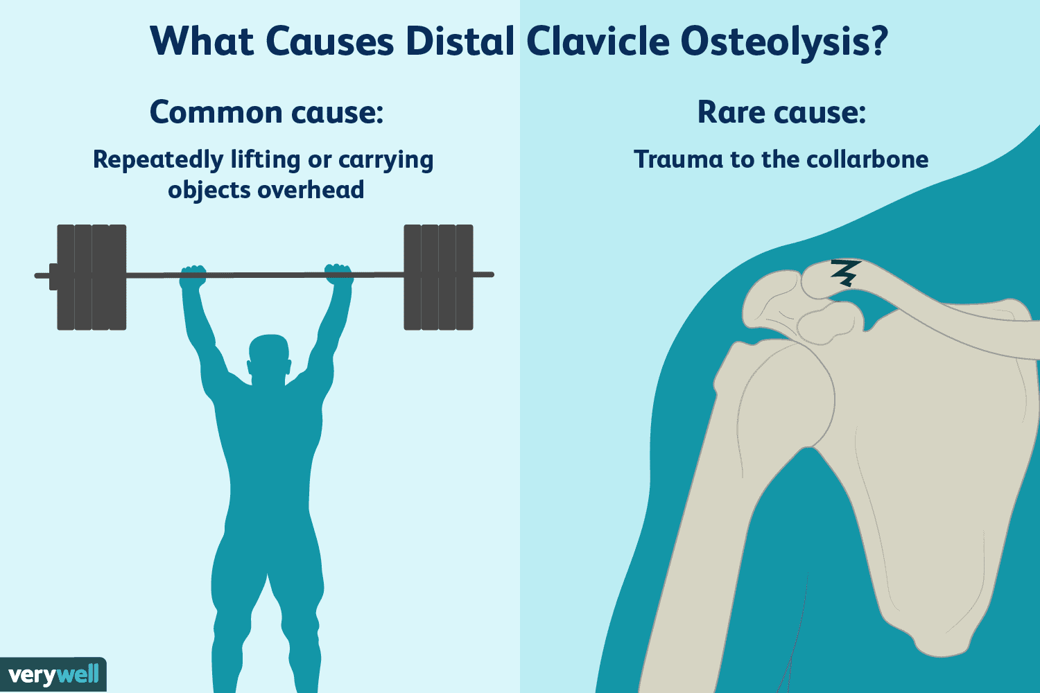 Causes And Treatment Of Distal Clavicle Osteolysis