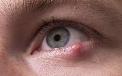 For What Causes a Stye?