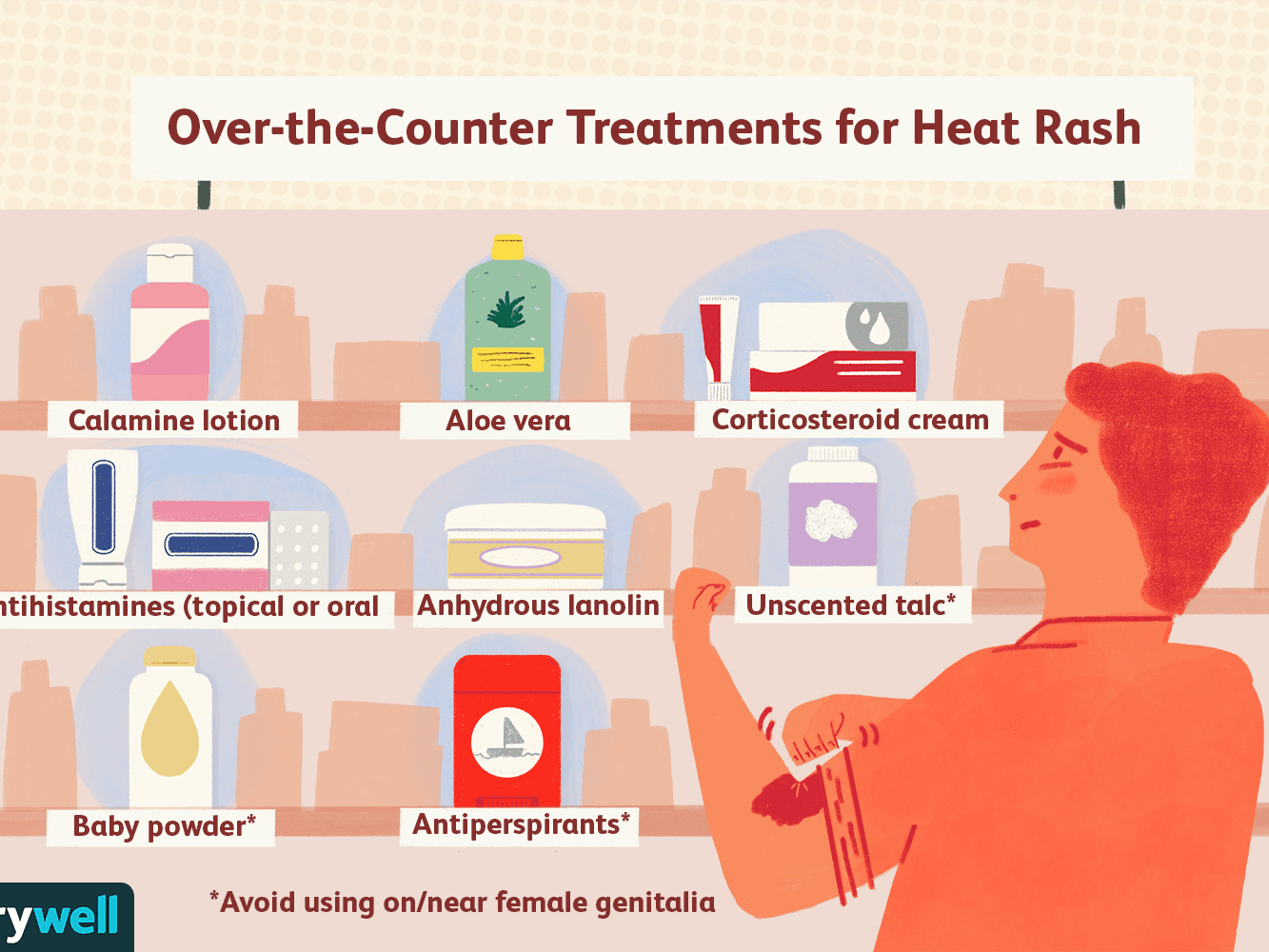 How to Treat Heat Rash