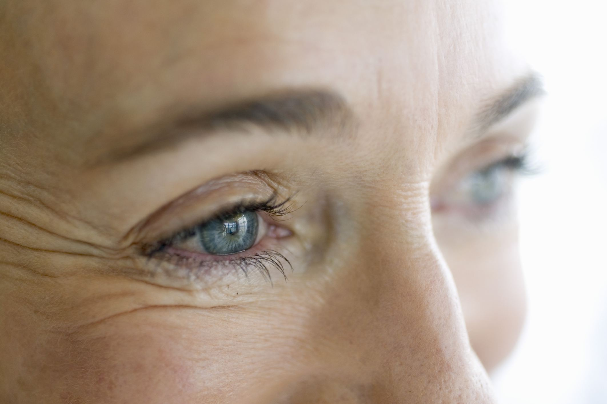 5 Ways Lupus Affects the Eyes