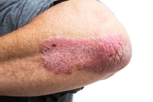 Psoriasis on a man's elbow