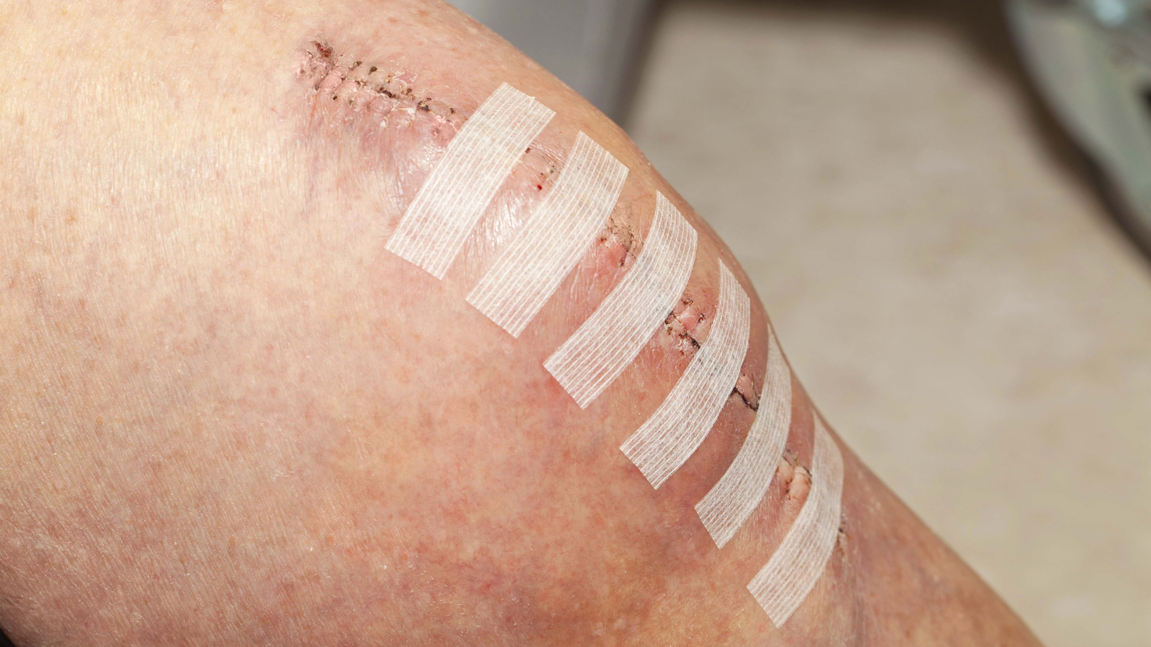 How to Care for a Surgical Wound - Incision Care Made Easy