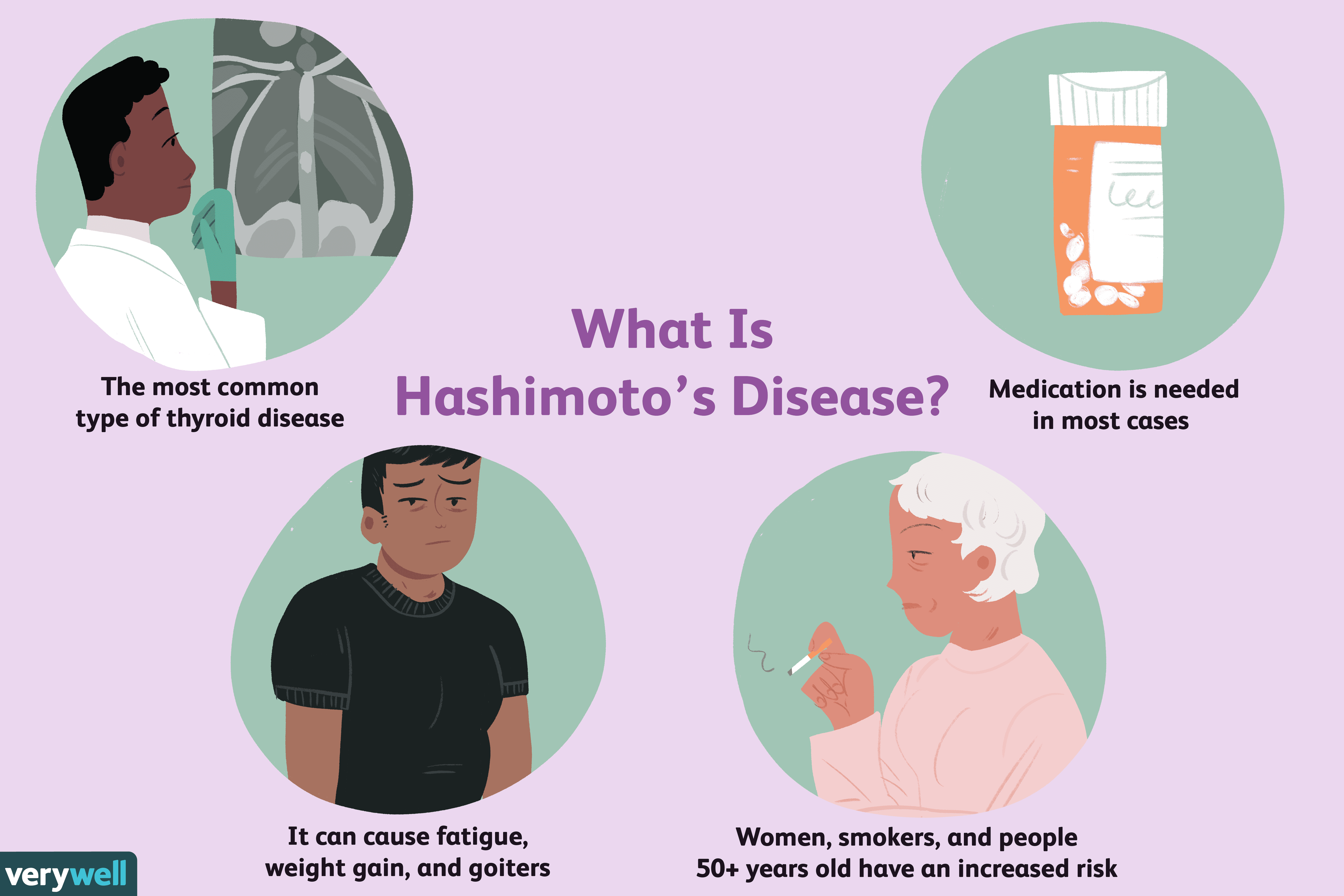Hashimoto S Disease Overview And More