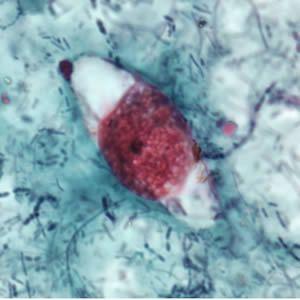 Cystoispora Belli (Isospora Belli)