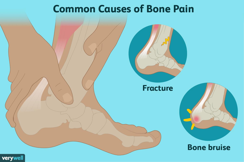 bone headache plus tender muscles