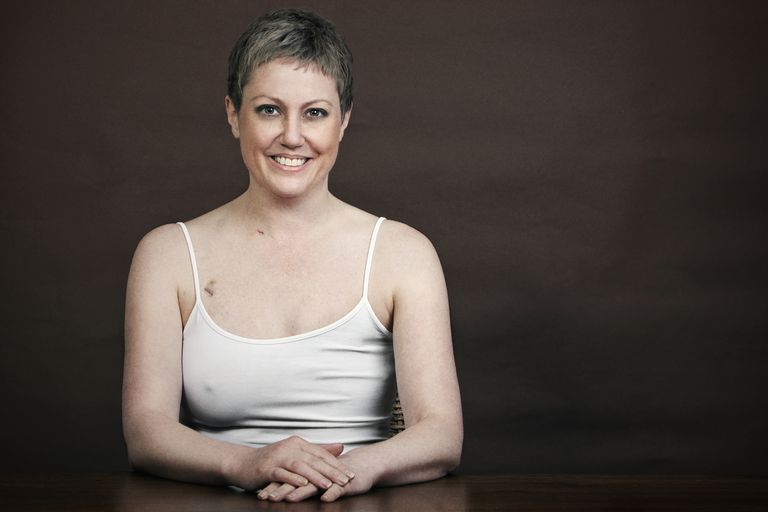 Pretty Breast Cancer Survivor with Mastectomy