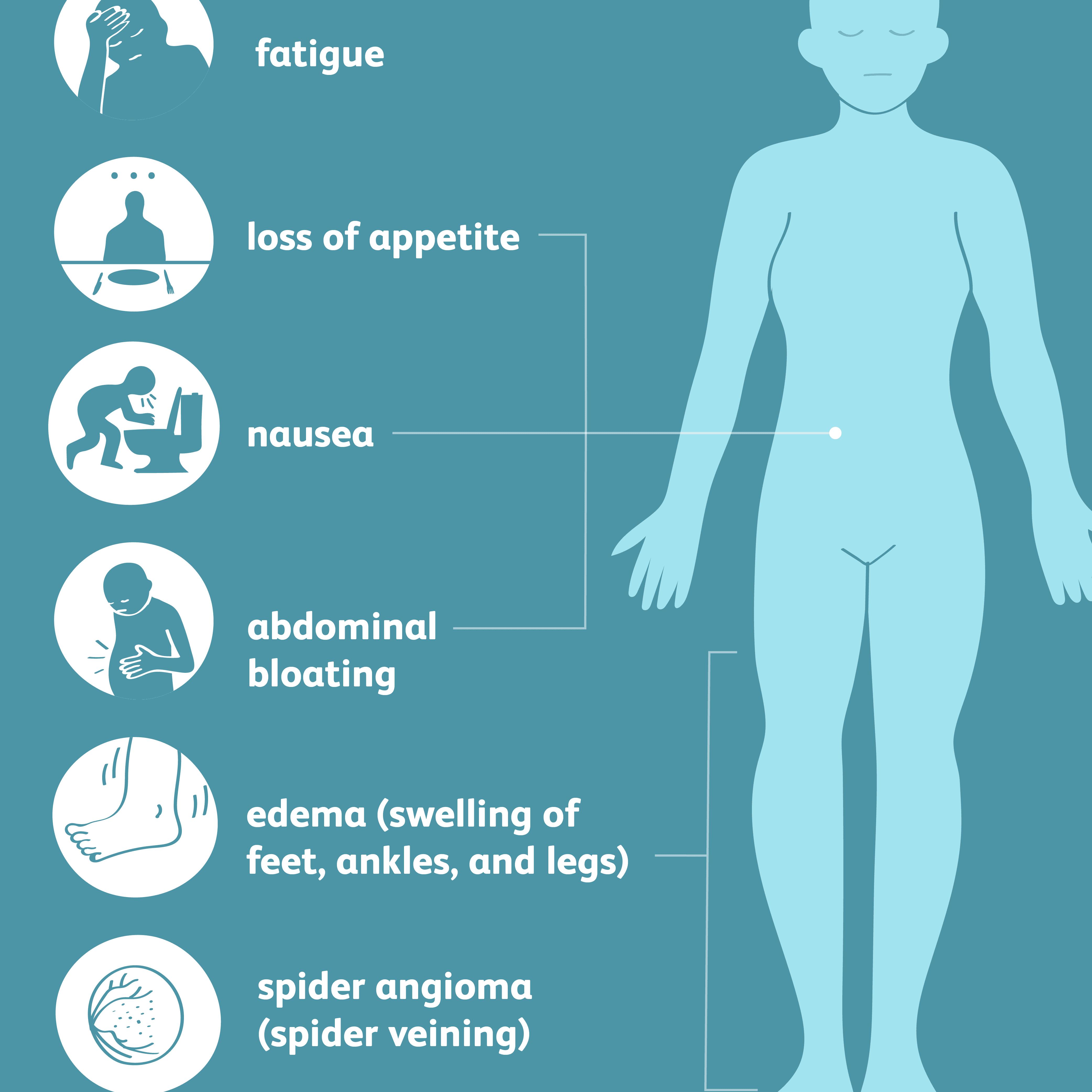 common symptoms of cirrhosis
