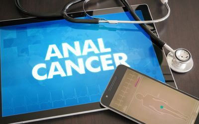 Anal cancer (cancer type) diagnosis medical concept on tablet screen with stethoscope