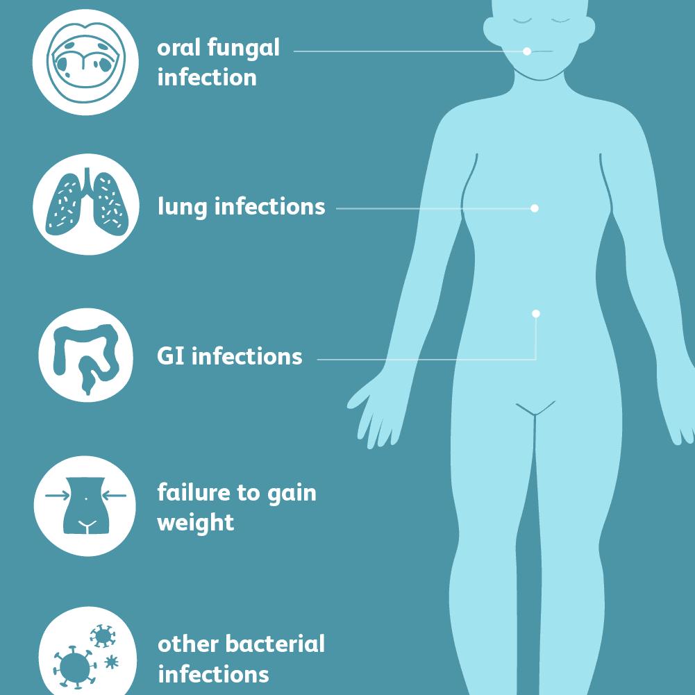 severe combined immunodeficiencies symptoms