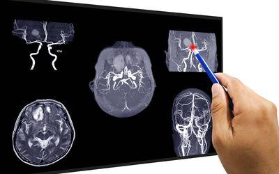 Brain aneurysm surgery prevents brain damage