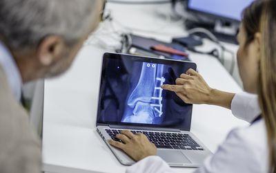 fracture healing bone stimulator