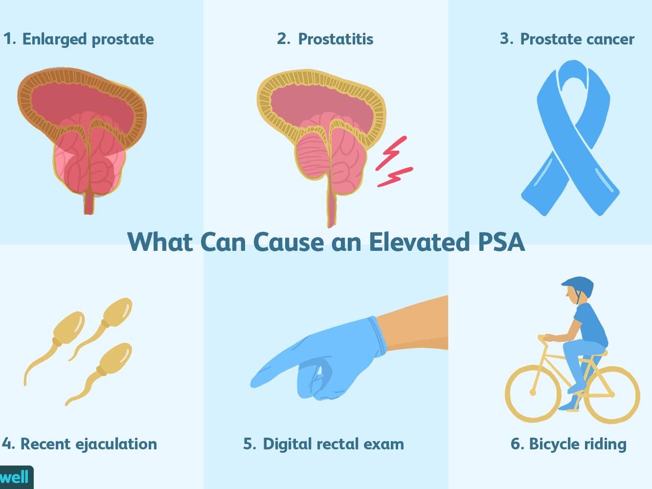LicopID a prosztatitis kezelésére Módszerek krónikus prosztatitis kezelése
