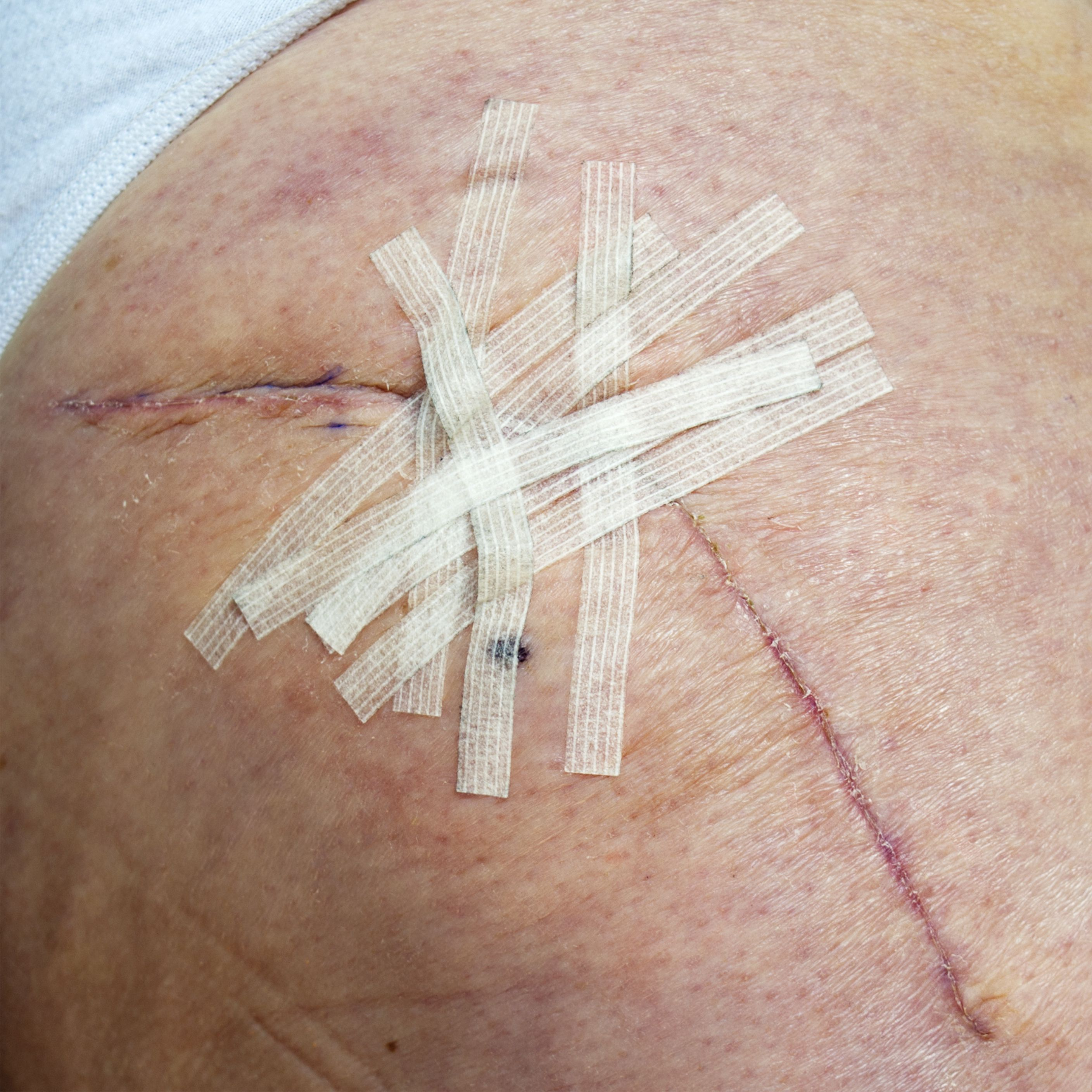 How to Remove Steri-Strips Safely After Surgery