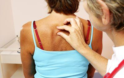 Melanoma: Symptoms, Causes, Treatment, and Prevention