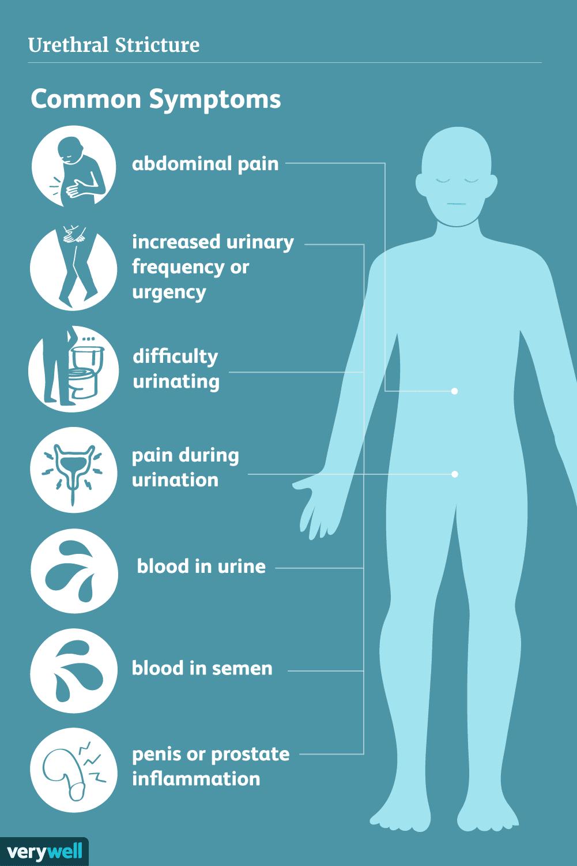 urethral stricture symptoms