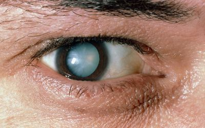 stroke symptoms with eyes  Eye Stroke: Symptoms, Causes, Diagnosis, and Treatment