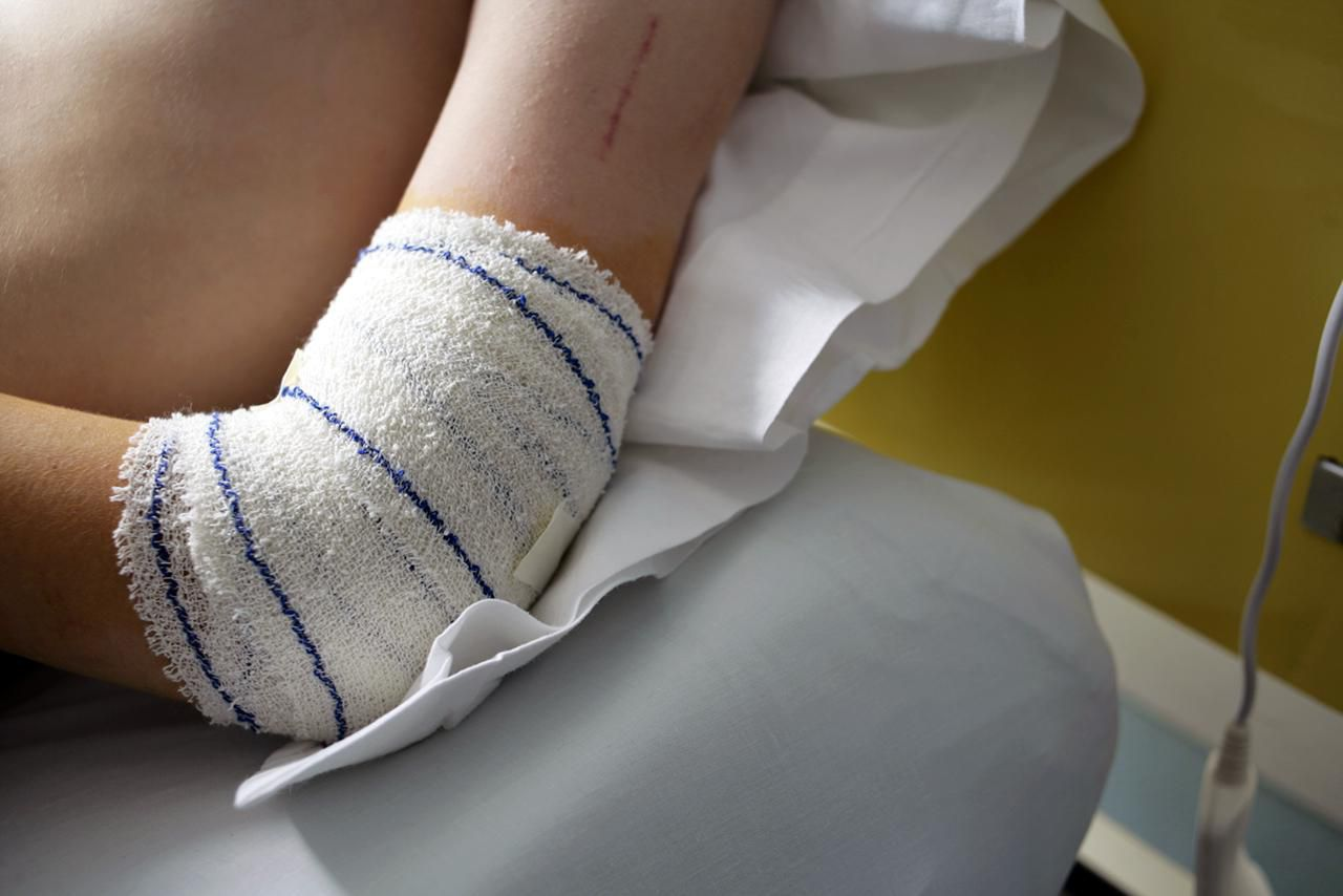 A bandage around a boy's elbow after an operation