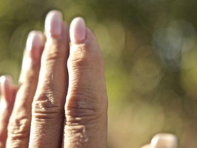 Osteoarthritis nodules on hand