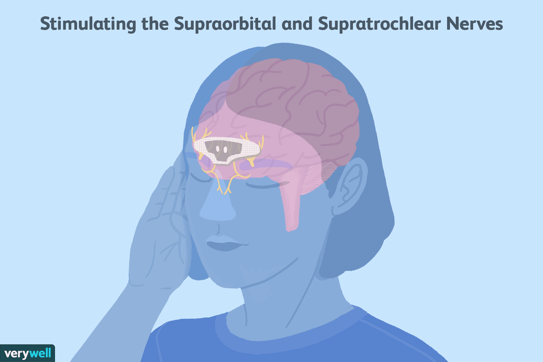 migraine nerve stimulation
