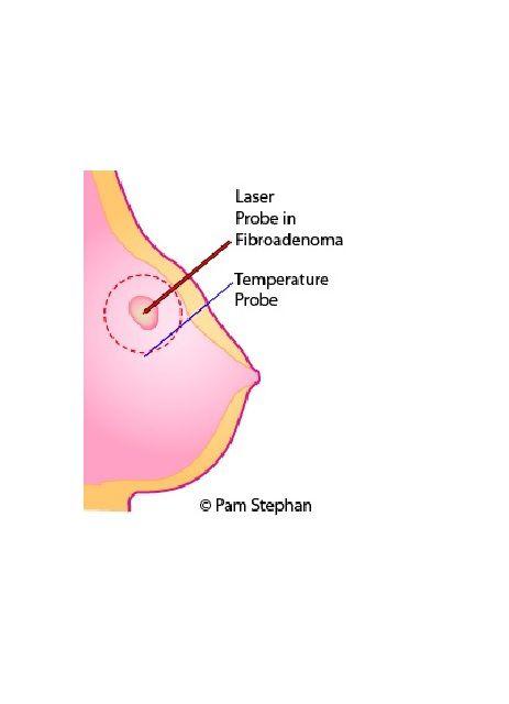 Novilase Laser Ablation for Breast Fibroadenomas