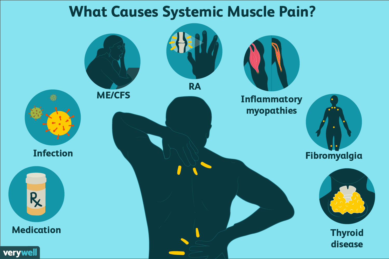 what are muscle pain