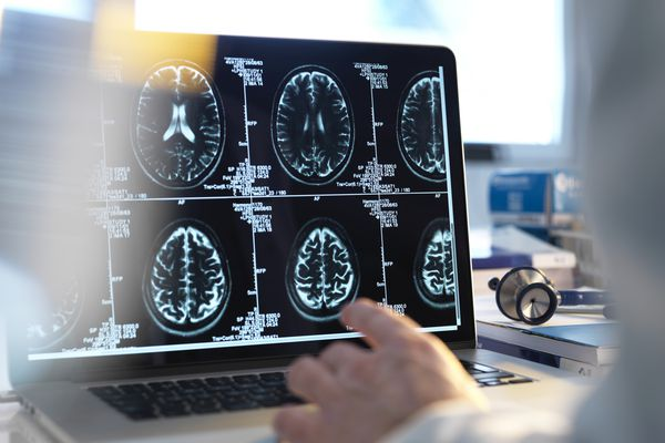 A doctor viewing a scan of the human brain