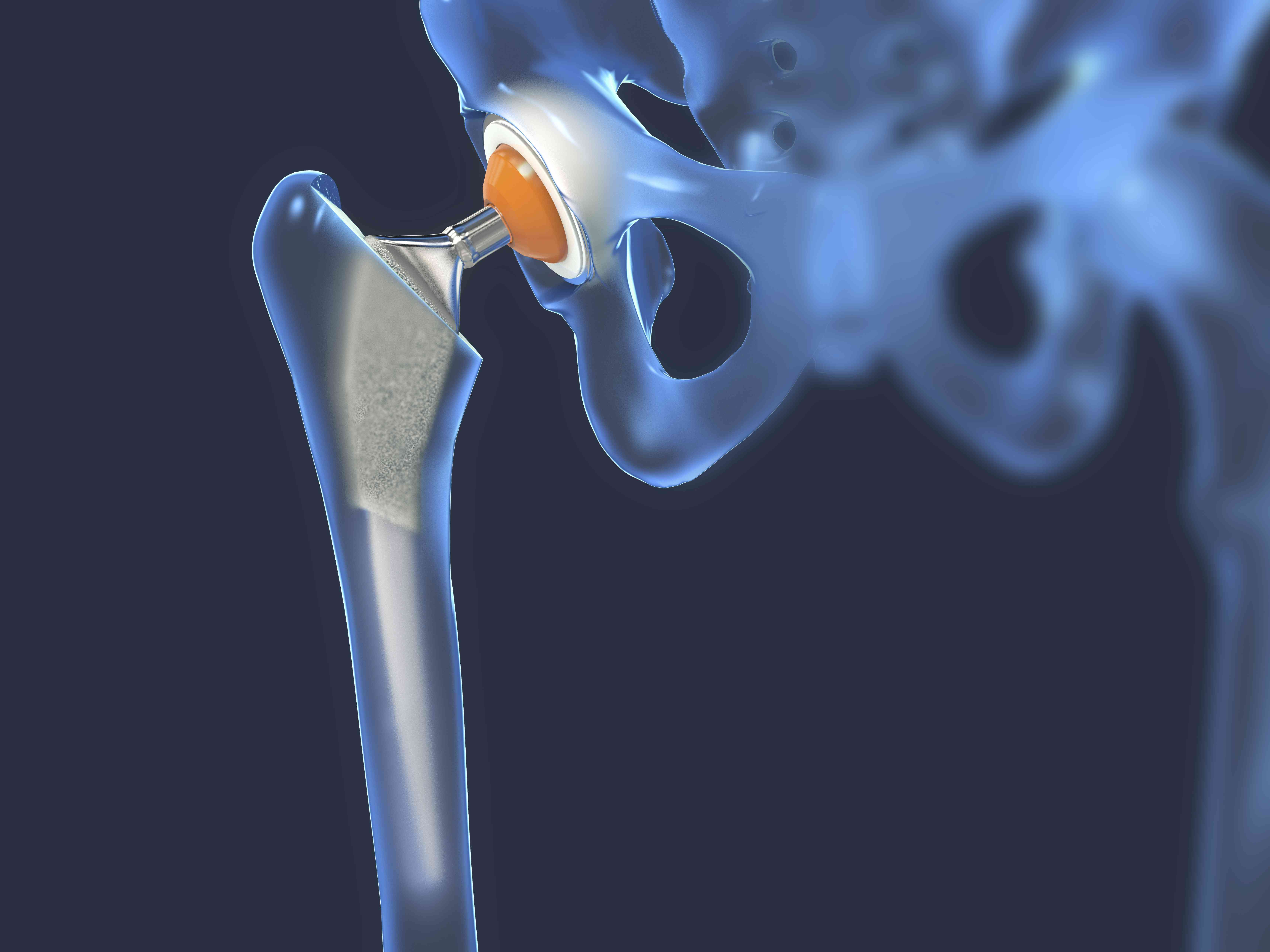 Hip replacement, illustration