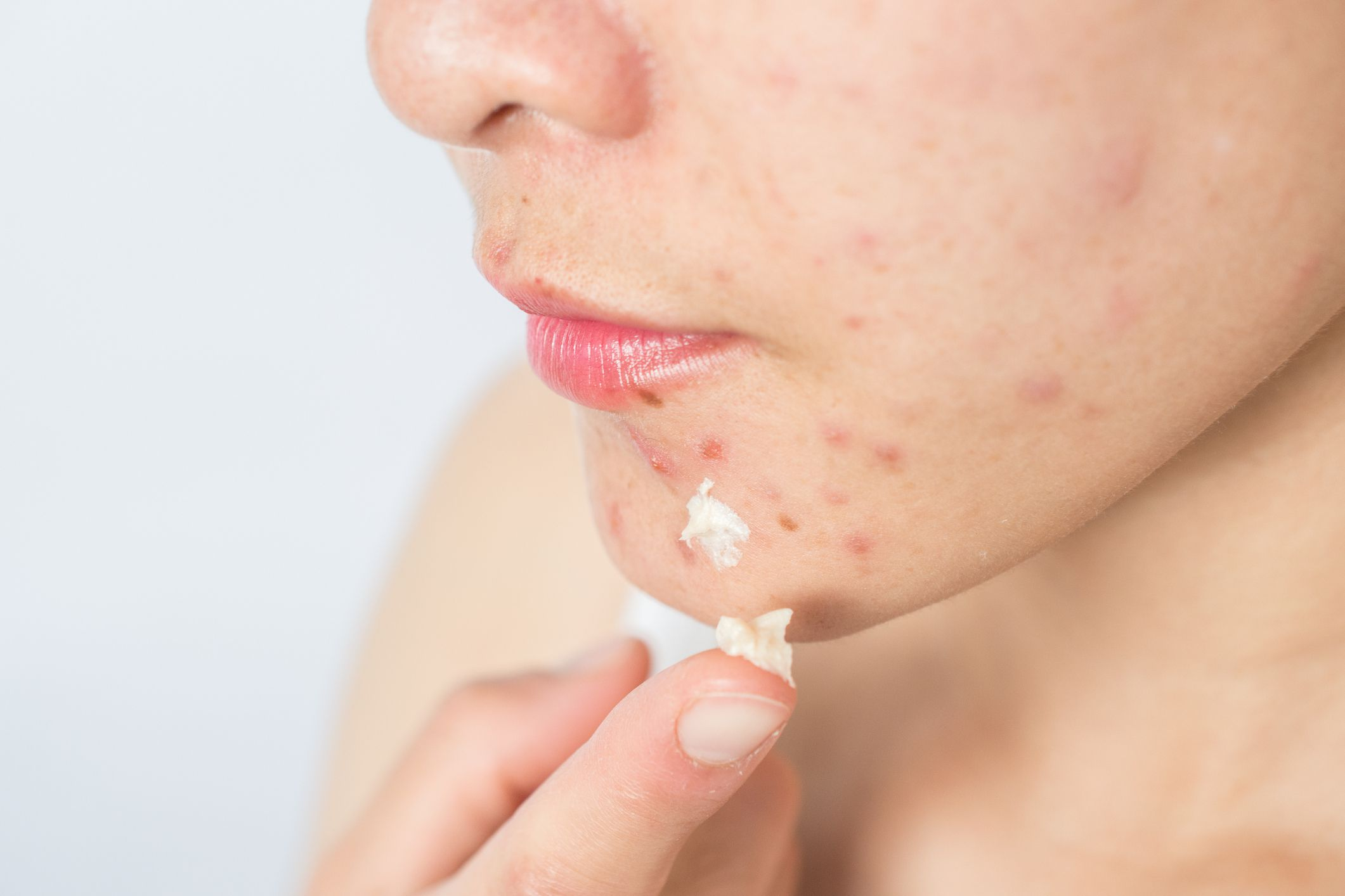 young Asian woman with acne applying acne cream on her face