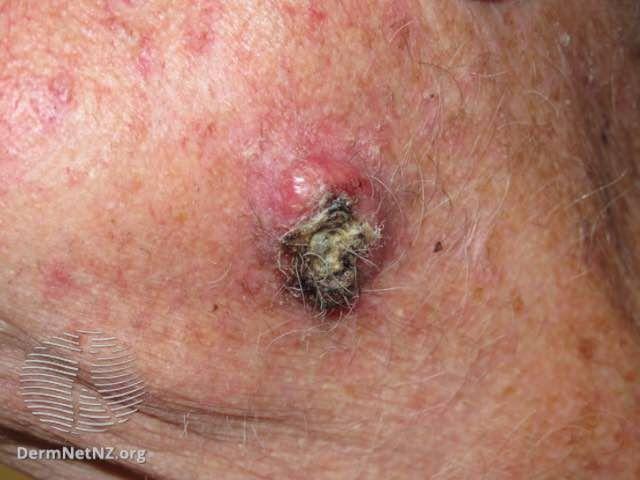 Cancerous lump
