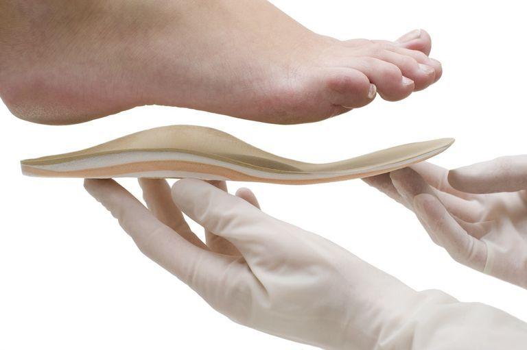 4fb143e26a Do Orthotics Help Posterior Tibial Tendonitis?