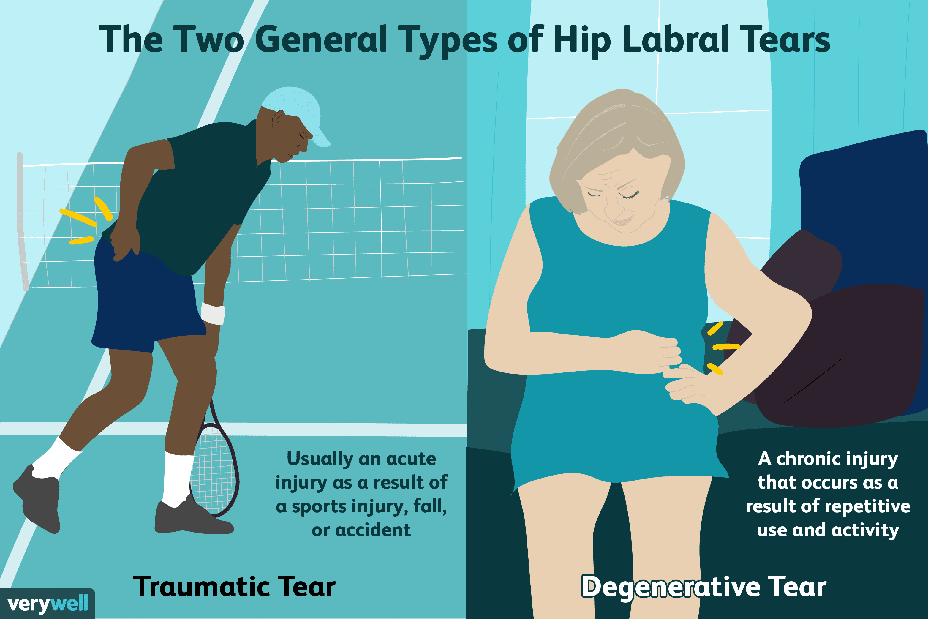 The Two General Types of Hip Labral Tears