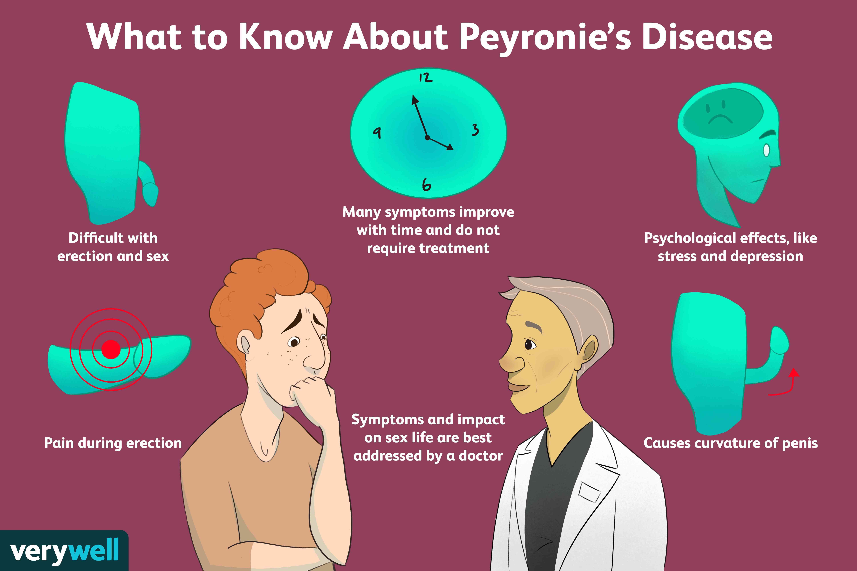 symptoms of peyronie's disease.