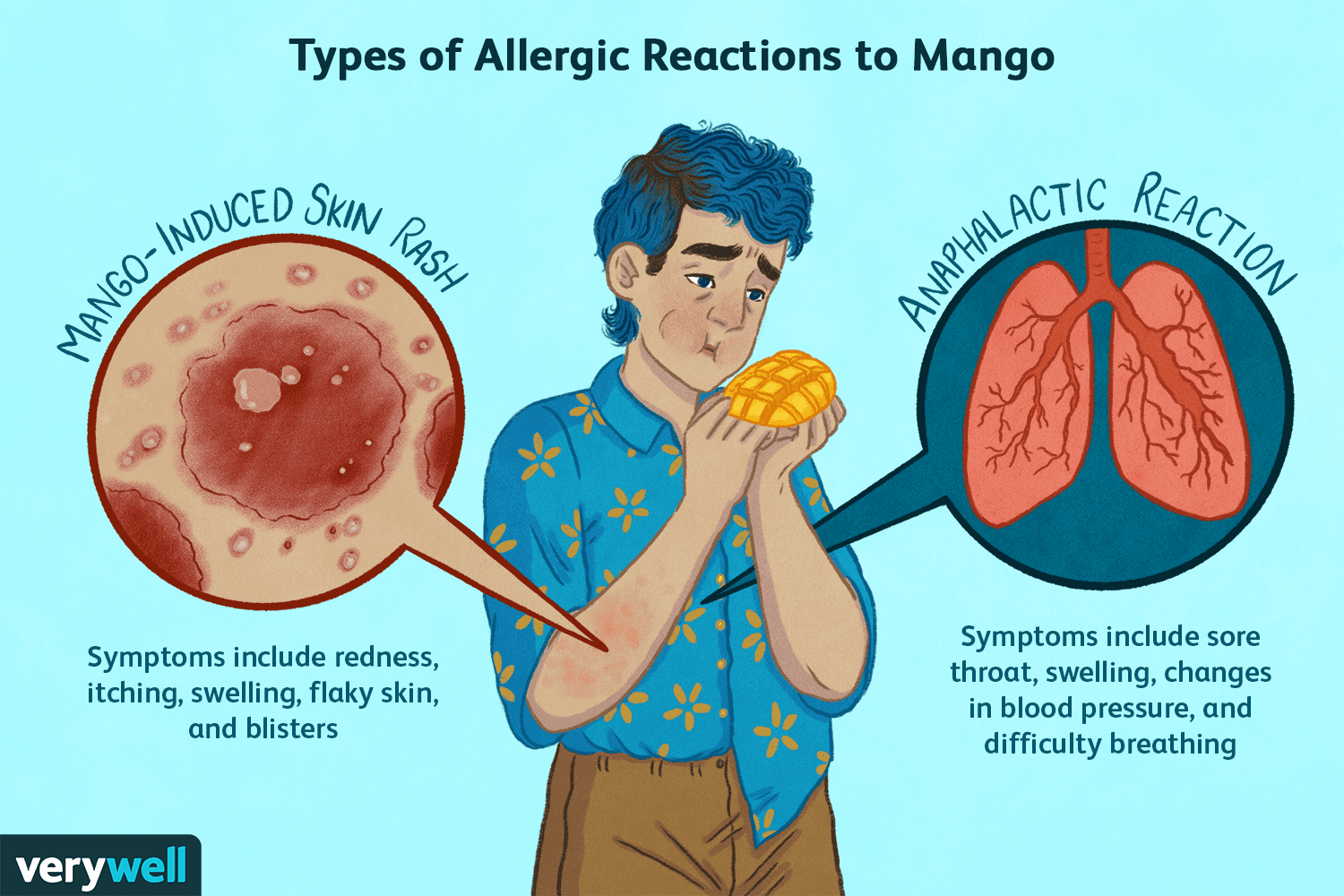 why do allergies cause sore throats