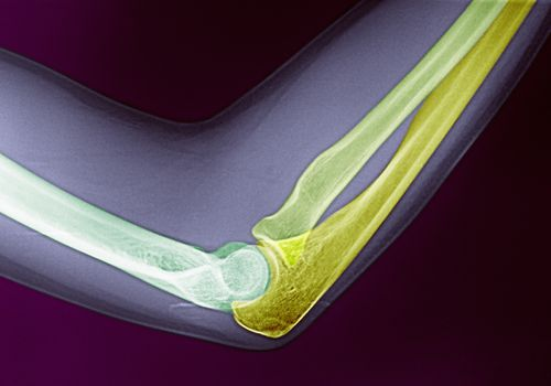 Elbow bone colored x-ray