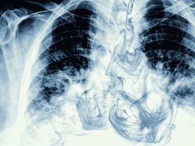 Smoke visible on chest X-ray