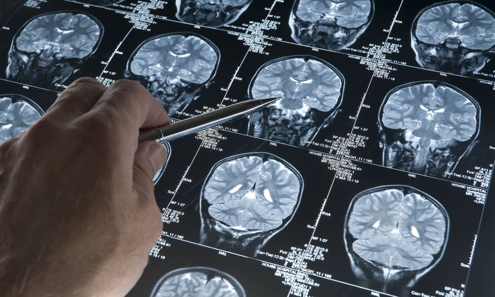 An MRI Can Be Used to Help Diagnosis Alzheimer's