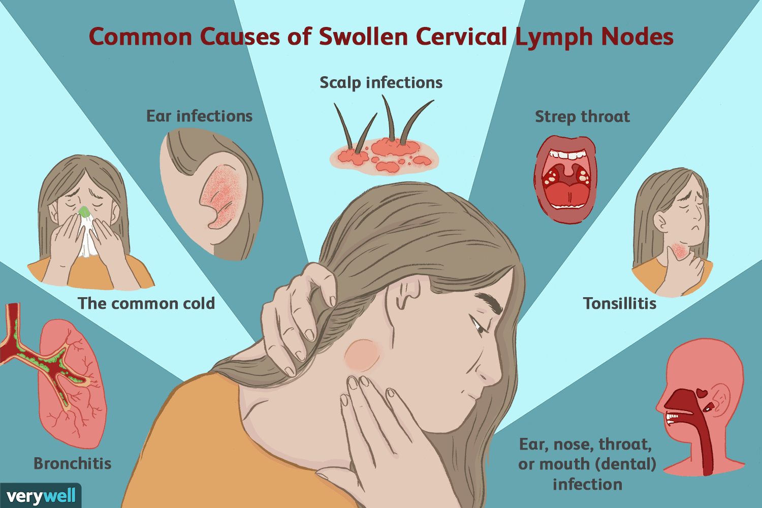 Enlarged Cervical Lymph Nodes
