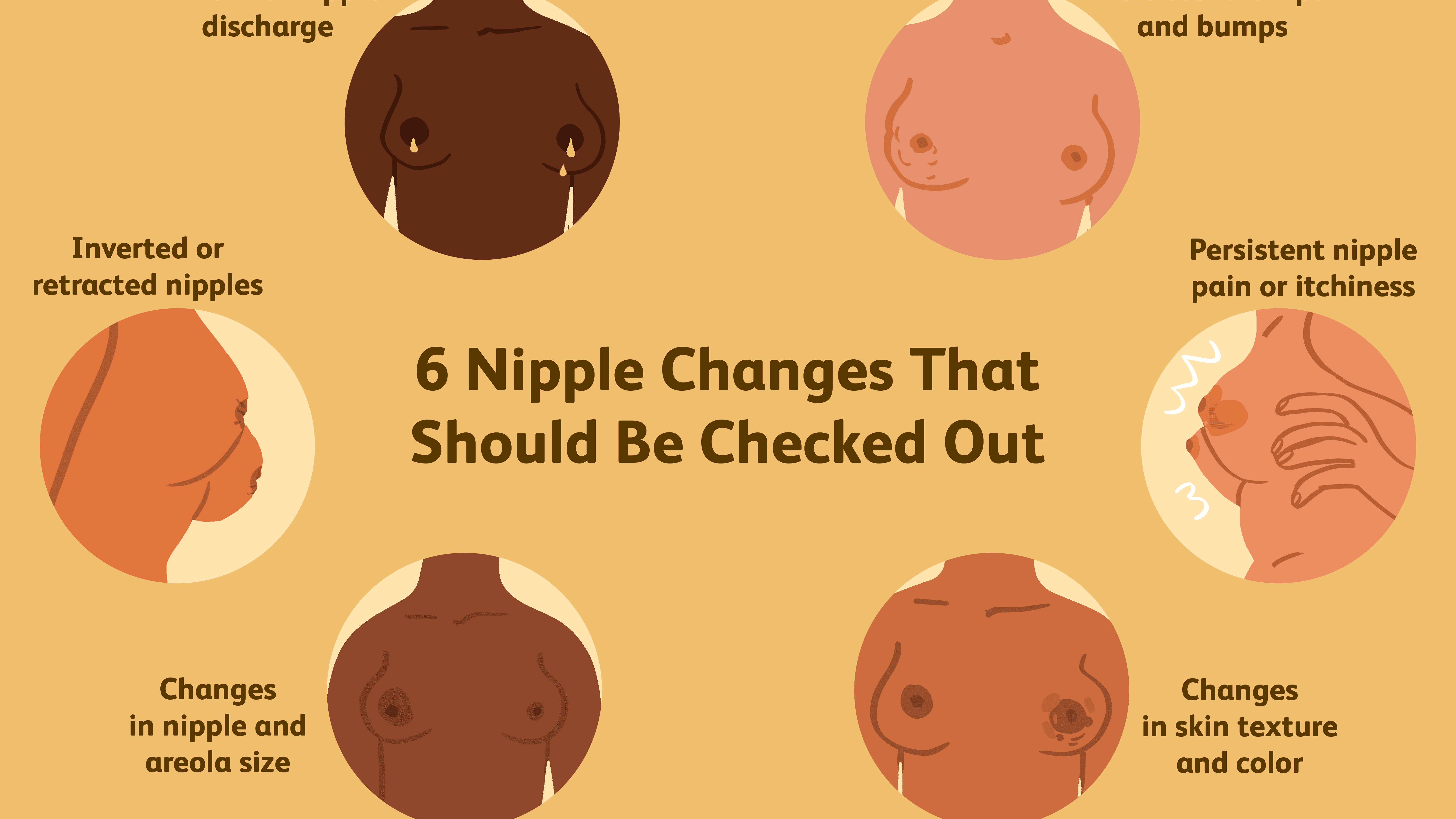 Nipple And Areolar Changes What S Normal What S Not
