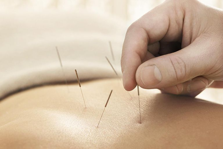Accupunture needles being placed into a woman's back for sciatica.