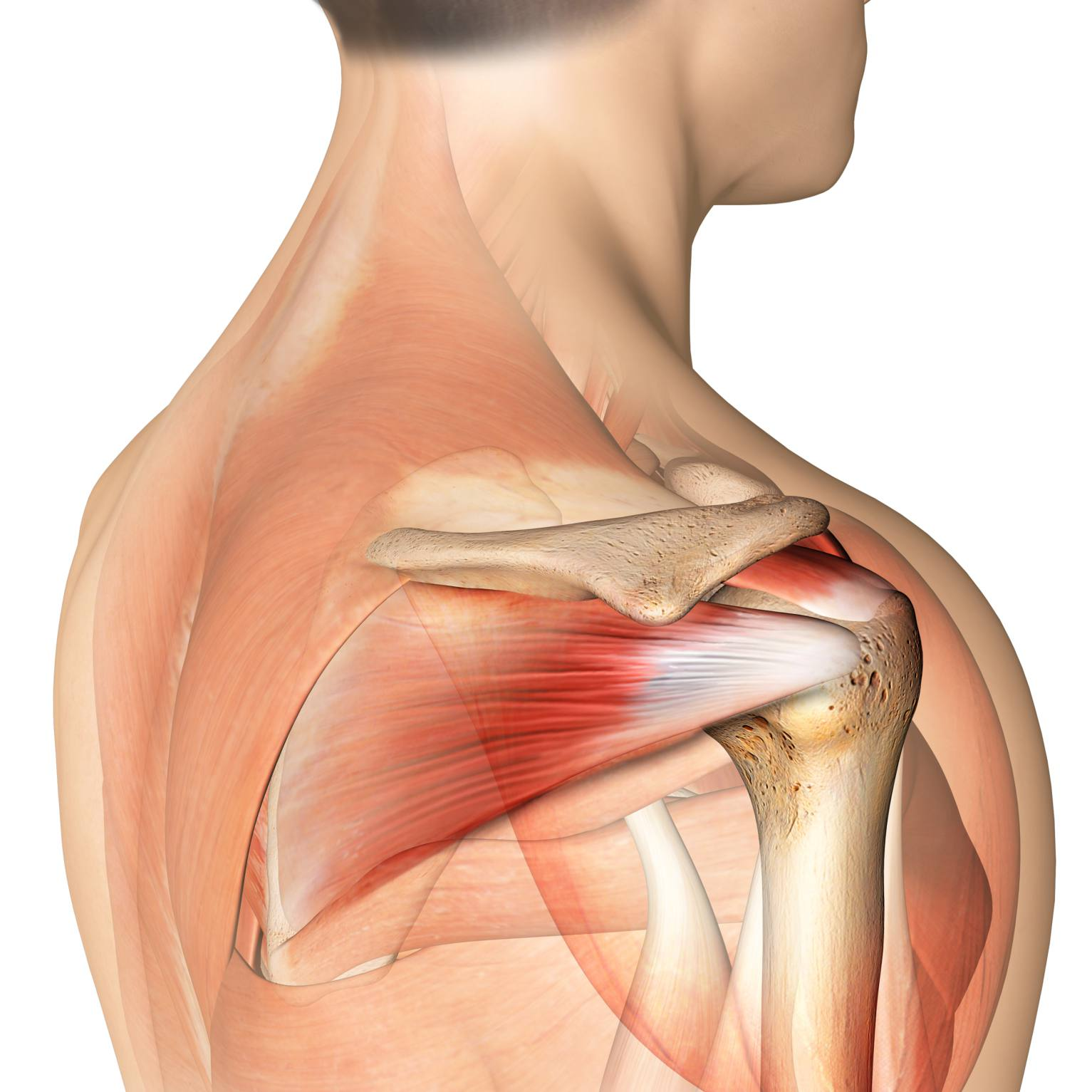 Rotator Cuff Tears Diagnosis Symptoms And Treatment
