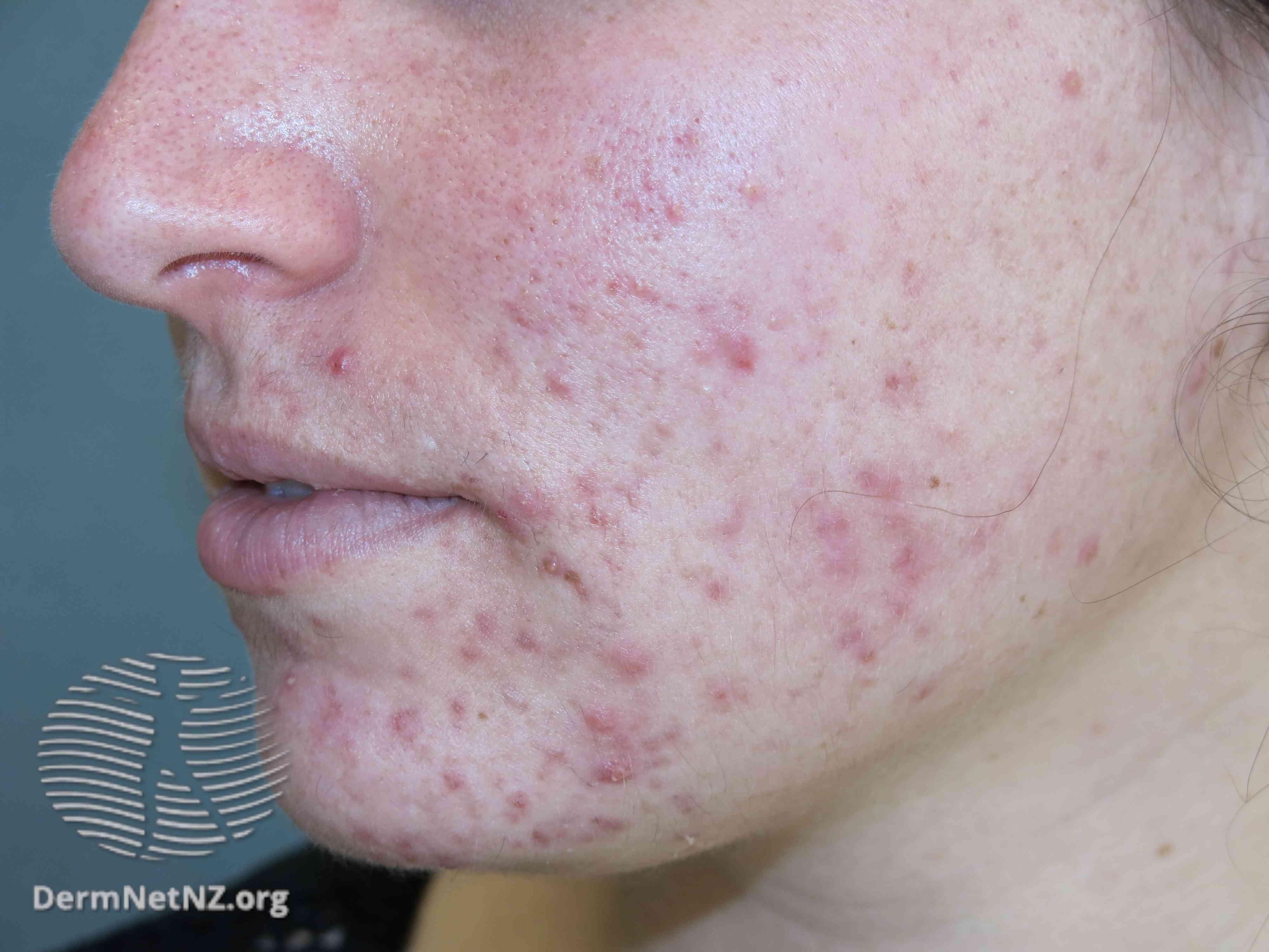 acne vulgaris on face