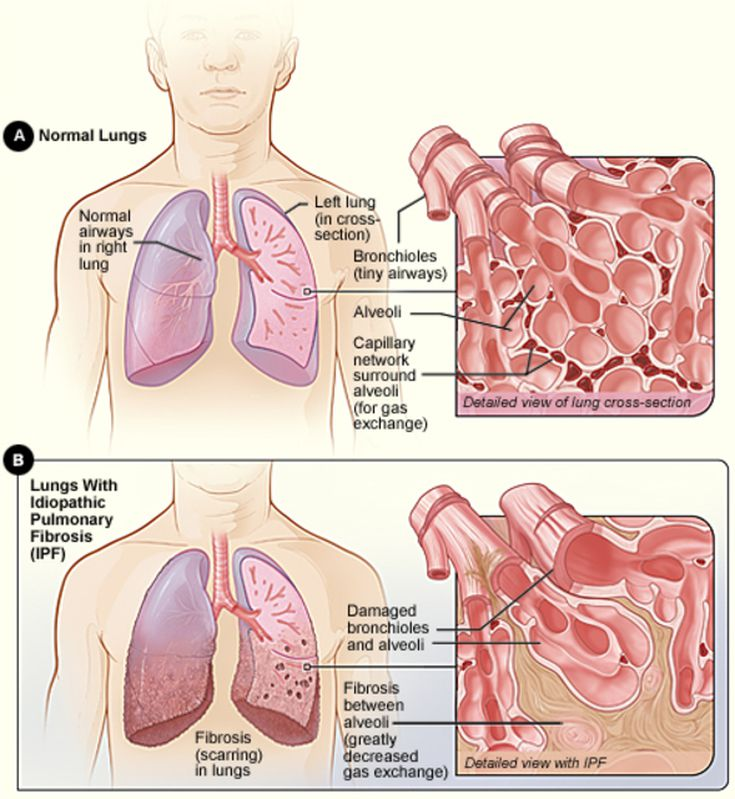 An Overview Of Idiopathic Pulmonary Fibrosis Ipf