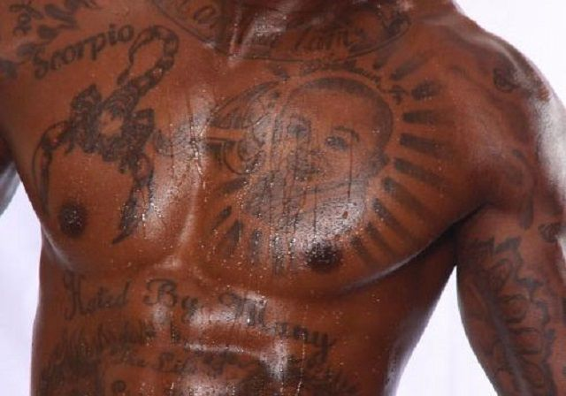 Frequently Asked Questions About Laser Tattoo Removal