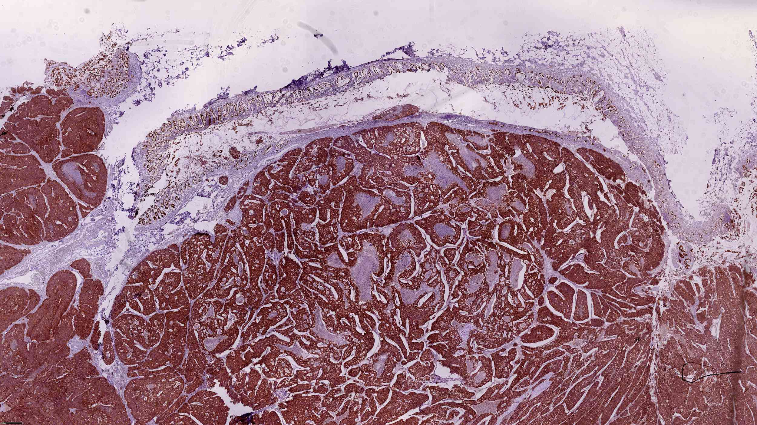 Immunohistochemical staining Hematoxylin-Eosin, highlights a malignant proliferate tumor (adnocarcinoma), adipose tissue (abdominal fat) infiltrated by a malignant lesion of pancreatic origin. Nerve fillets with perineal infiltration are presented.