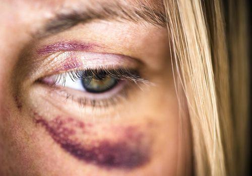 USA, New Jersey, Jersey City, Portrait of woman with black eye