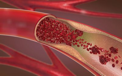 Arteriosclerosis, hardening of the arteries