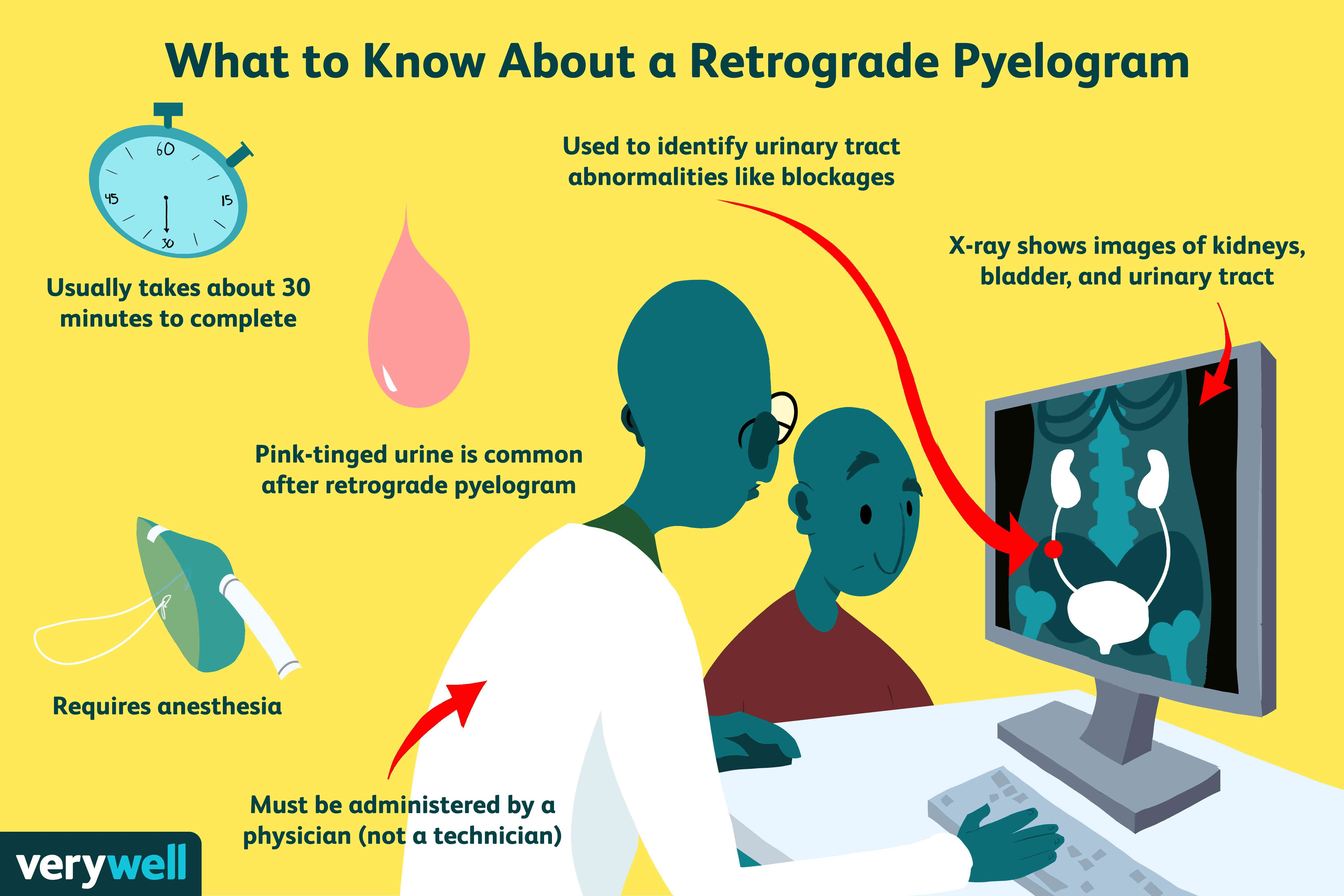 What to know about a retrograde pyelogram